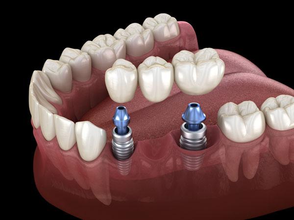 1mostiček-na-implantatih-1