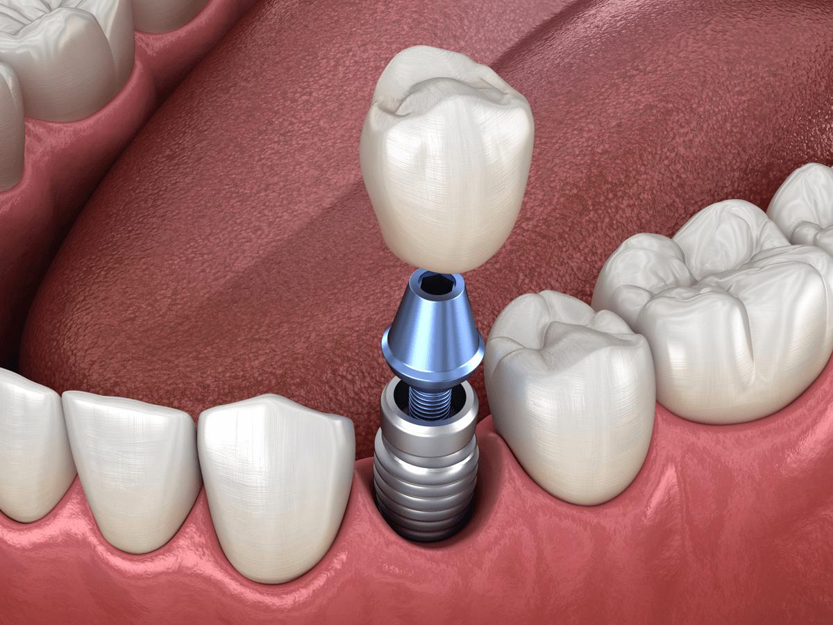 zobni-vsadek