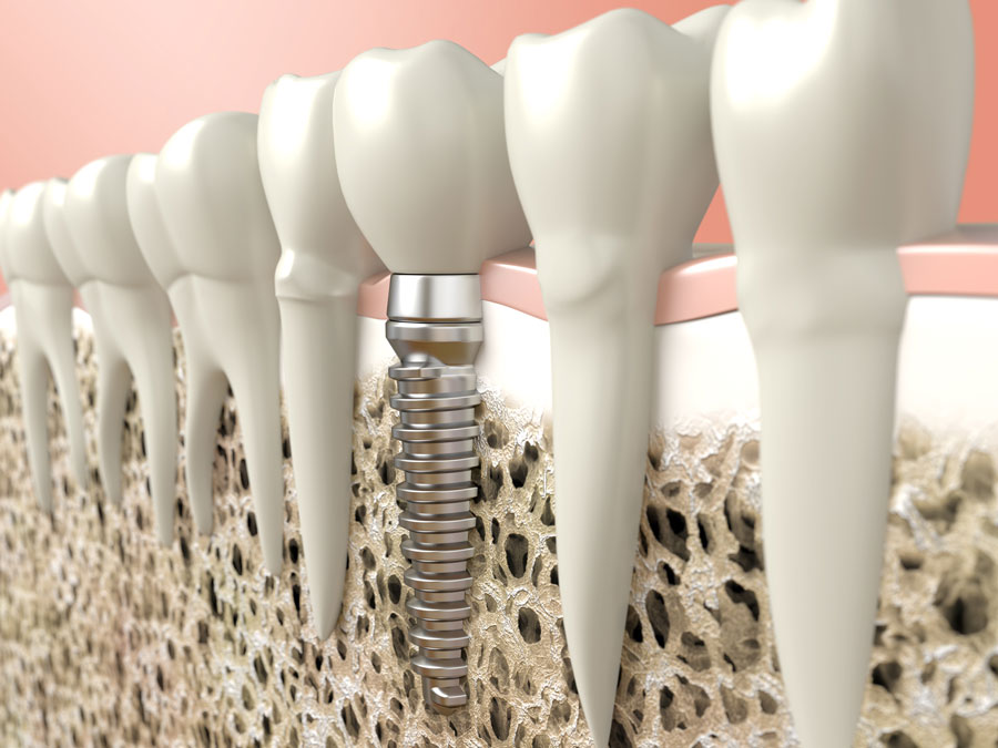 1zobni-implantat