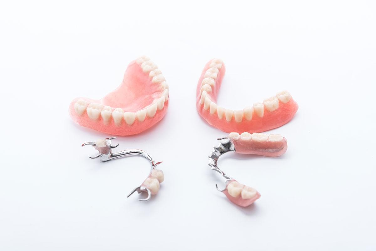 zobne-proteze