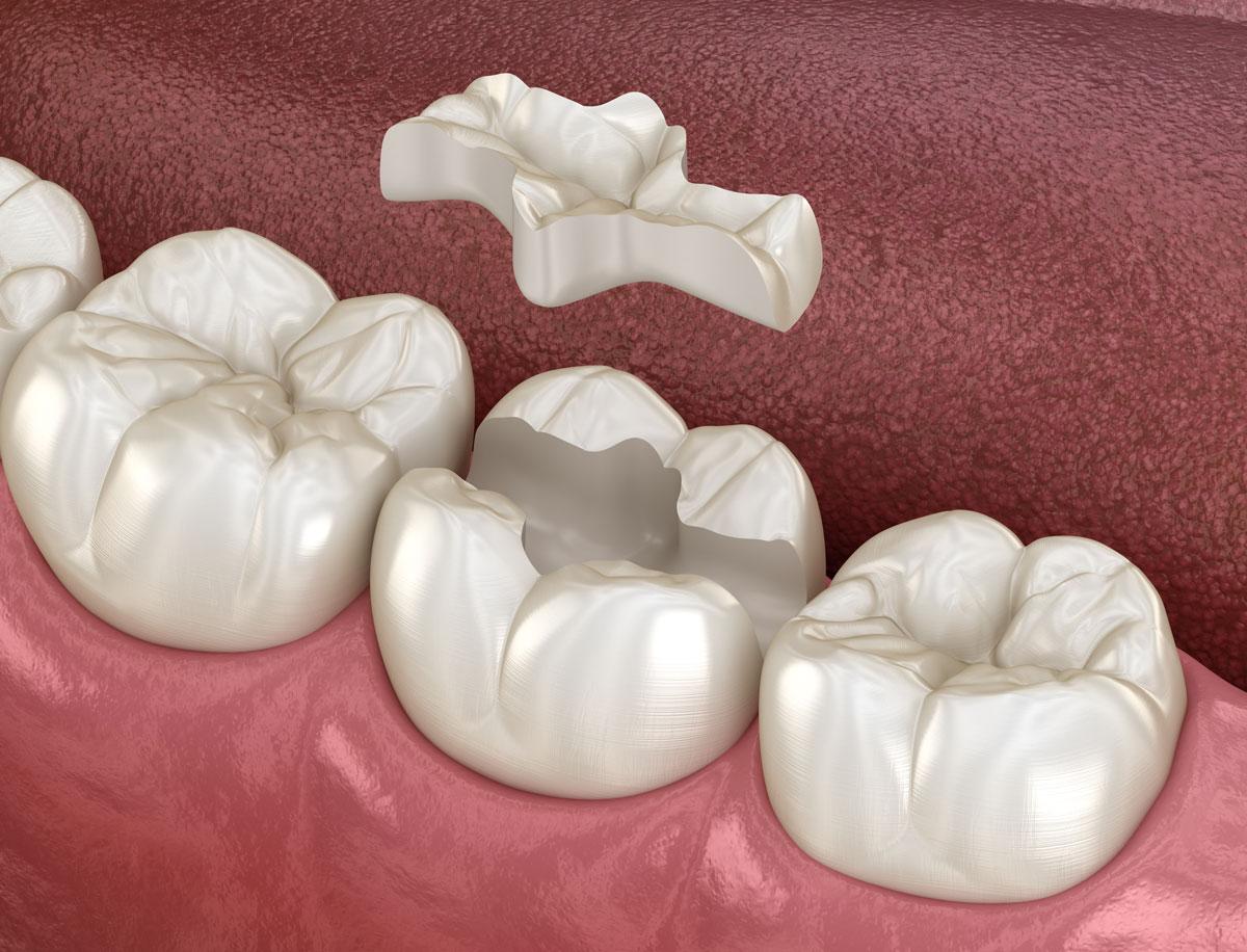 zobni-inlay